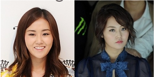 4minute's Gayoon Suspected Of Having Plastic Surgery?