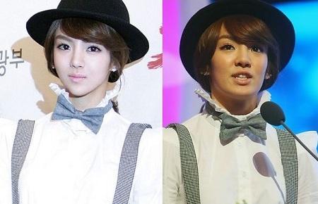 should-snsds-hyoyeon-get-plastic-surgery_image