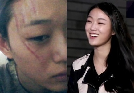 Korea's Next Top Model Contestant Attacked By Anti-Fan