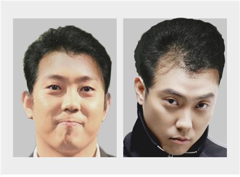 Will Eun Ji Won Go Bald in the Future?