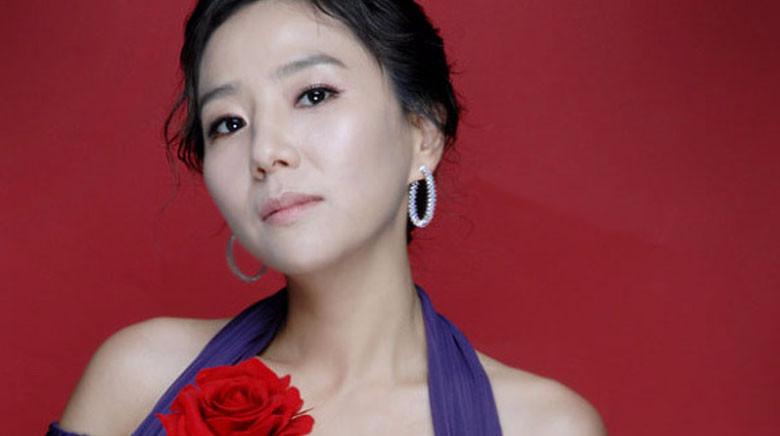 """Descendants Of The Sun"" Actress Seo Jeong Yeon Joins YG Entertainment"