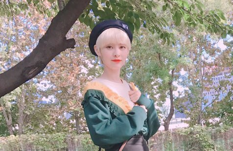 """DIA's Yebin Sustains Ankle Injury While Practicing For """"The Unit"""""""