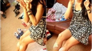 sistars-bora-reveals-photos-of-injured-leg-relieves-fans_image