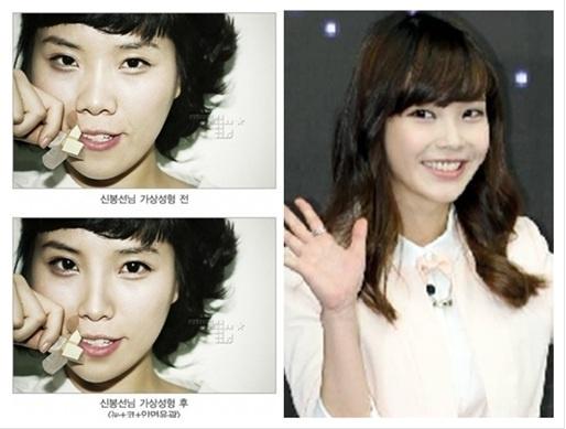 If Shin Bong Sun Had Plastic Surgery, Would She Look Like IU?