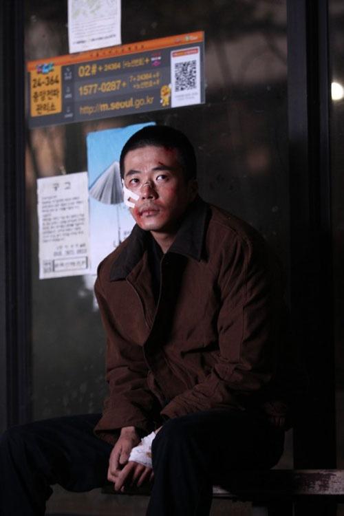 kwon-sang-woo-all-beaten-up-why_image