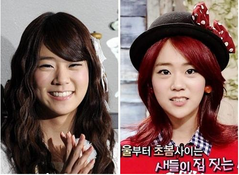 KARA Han Seung Yeon's Changing Jaw Line Sparks Buzz
