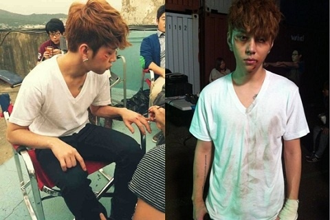 BEAST's Yong Junhyung Gets Injured?