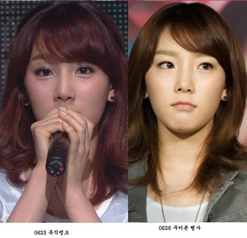 Fans Dispute Girls' Generation Taeyeon's Plastic Surgery Rumor with Old Photos
