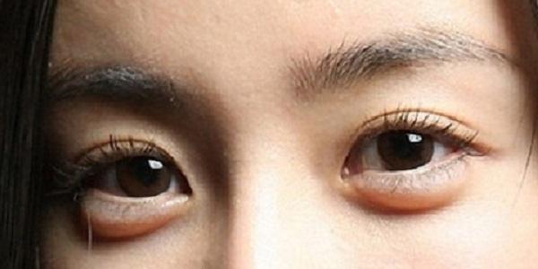Korea's New Internet Meme: Beautiful Female Stars' Eye Bag Removal and Addition